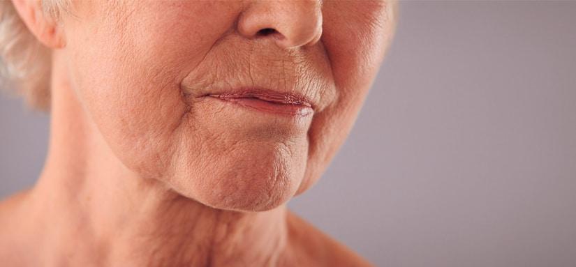 Como combater a flacidez facial sem cirurgia