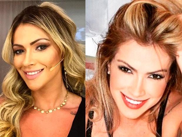 Md Code: 4 famosas que fizeram harmonização facial Fani Pacheco