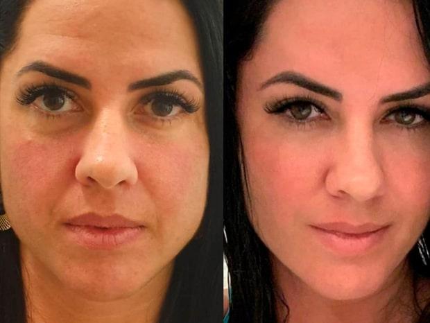 Md Code: 4 famosas que fizeram harmonização facial Graciele Lacerda