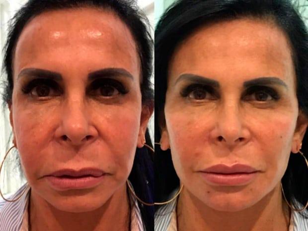 Md Code: 4 famosas que fizeram harmonização facial Gretchen