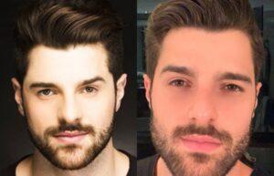5 famosos que fizeram harmonização facial 1