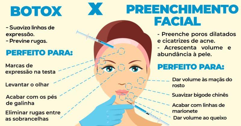 Principais diferenças entre botox e preenchimento facial