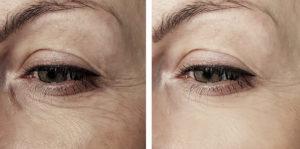 Tratamento com laser co2 fracionado para rejuvenescer o rosto.