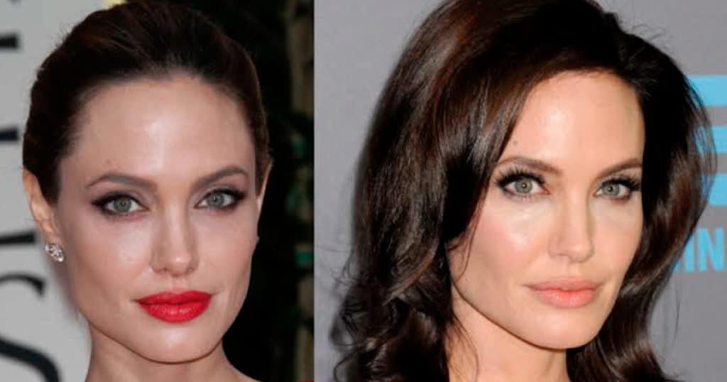 Preenchimento labial: antes e depois das famosas e cuidados após o procedimento.