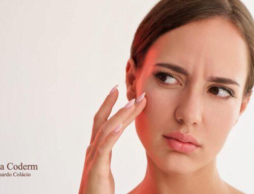 Doenças de pele: você sabe identificar se a sua é perigosa?