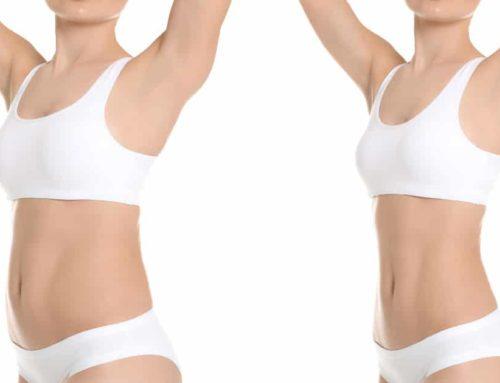 Elimine células de gordura e modele seu corpo com a Hidrolipo
