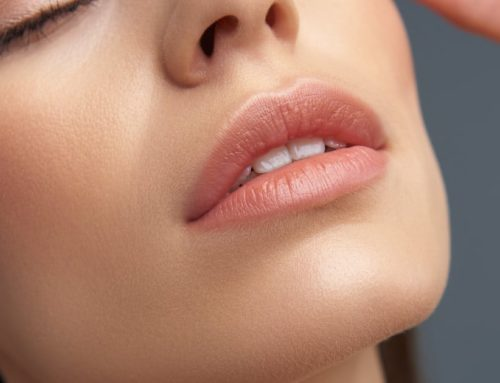 Tudo que você precisa saber sobre o preenchimento labial