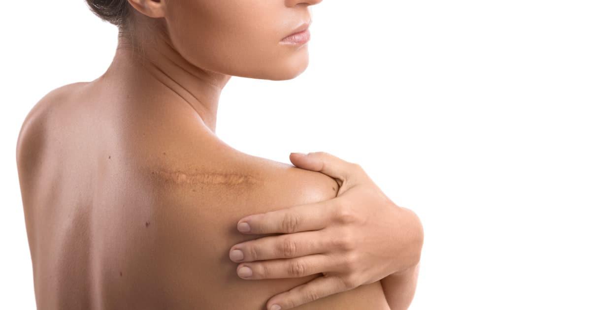 Como eliminar cicatrizes e queloides? Melhore a sua autoestima!