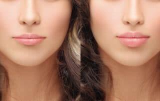 Preenchimento labial: saiba tudo sobre o procedimento!