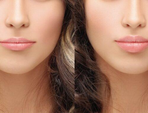 Preenchimento labial: conheça o procedimento!
